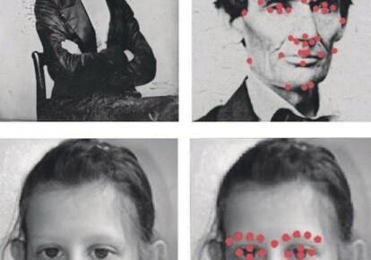 При использовании новой программы заболевание можно выявить как можно быстрее – результат обработки фото показывает, где искать дефектный ген