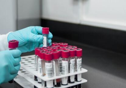 За минувшие сутки в ВСУ зарегистрирован 41 новый случай COVID-19