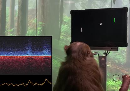Мавпа грає в відеогру за допомогою імплантованого в мозок чіпа