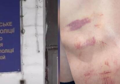 Пытки в полиции/Сіспільне