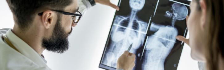 20 вопросов о раке. Бывает ли у мужчин рак груди и можно ли им заразиться