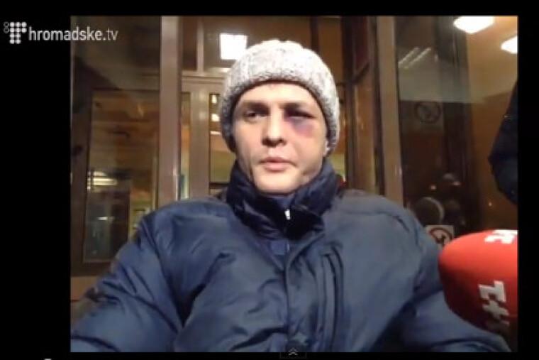 Игорь Луценко общается с журналистами после похищения и избиения во время Евромайдана, 2014 г.