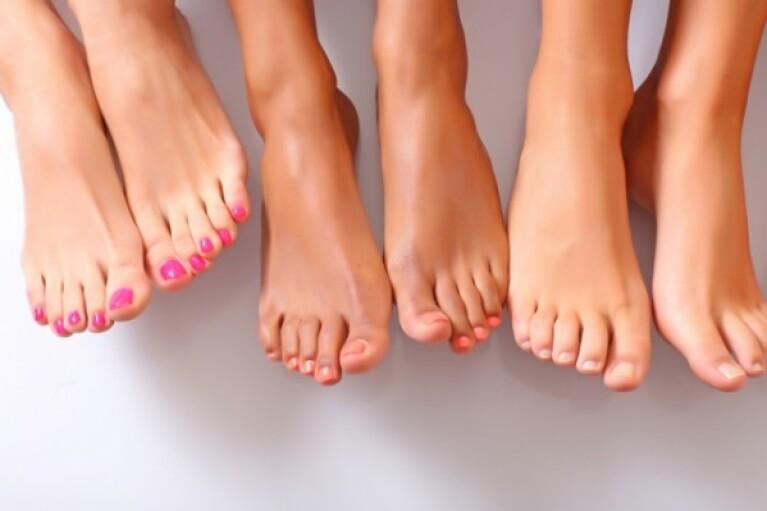 Как избежать деформации пальцев ног из-за неудобной обуви