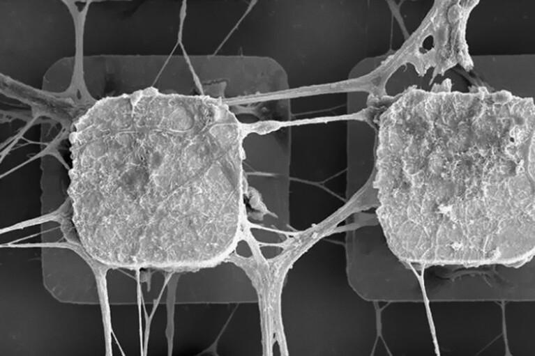 Deus ex machina. Навіщо вчені вирішили підсадити в ІІ стовбурові клітини людини