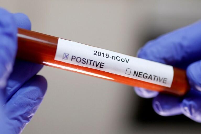 Коронавірус у світі: статистика станом на 20 квітня