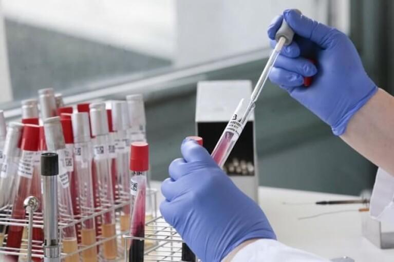 На третину менше: за добу в Україні 10 тисяч COVID-інфікованих