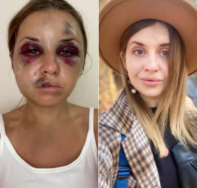 Анастасия Луговая после нападения (слева) и до (справа)